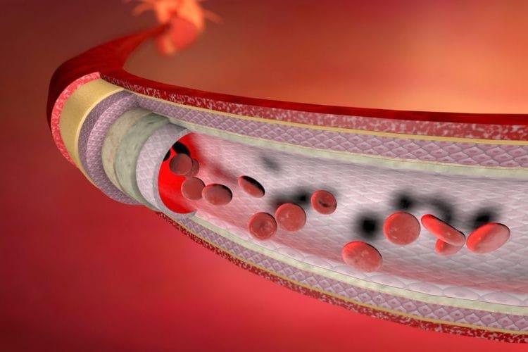 Wie lange braucht man, um THC aus dem Blut zu entfernen?